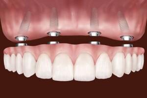 Незнімне протезування зубів